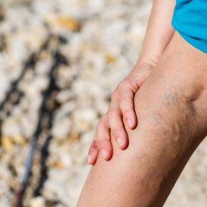 Chronic Venous Insufficiency & Varicose Veins Specialist